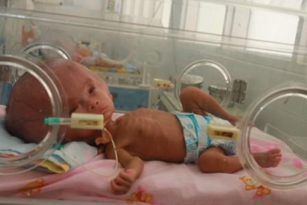 Bayi laki-laki Rongga Yina Usia 1 bulan mengalami Hydrocephalus ada di ruangan khusus dan di dalam inkubator di RSUD Umbu Rara Meha Sumba Timur