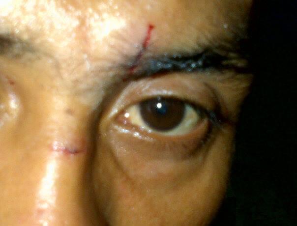 Petinju Indonesia Kelas Layang 49 Kg - Cornelis Kwangu Langu Dengan Wajah Terluka Akibat Ditanduk Petinju Malaysia