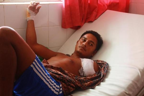 Deni Warga Laijanji yang di serang buaya di laut saat dirawat di RSUD Umbu Rara Meha [ Foto : Heinrich Dengi ]